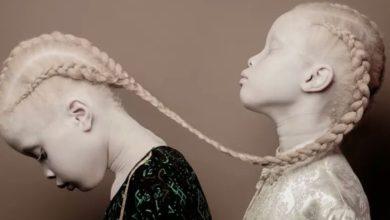 Photo of En Tanzanie, les meurtres et les mutilations d'enfants atteints d'albinisme continuent